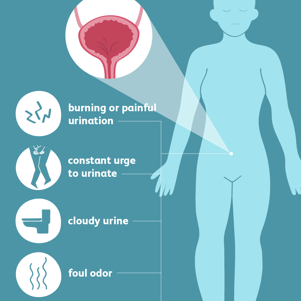 urinary tract infections: symptoms and complications