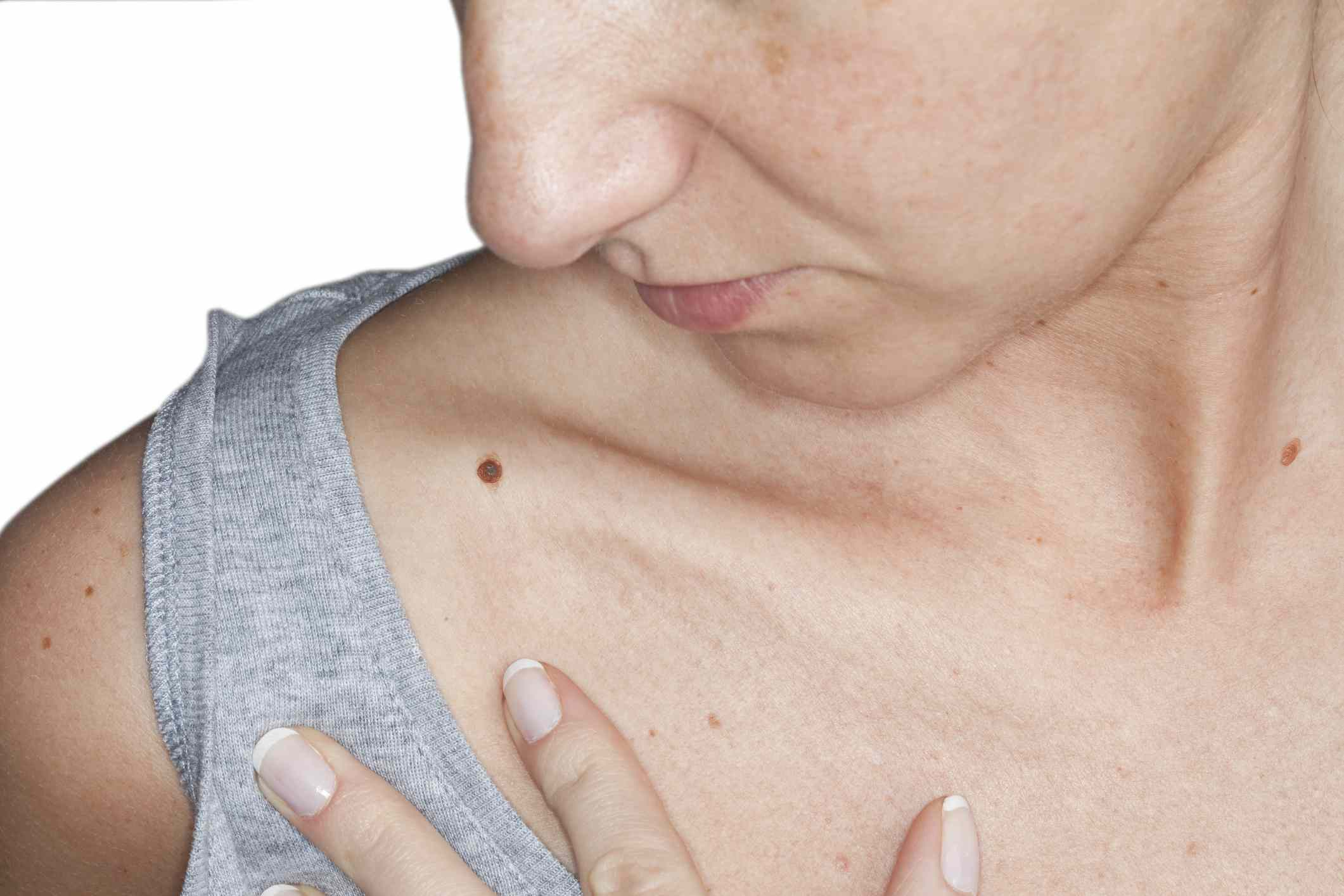 Woman looking down at mole on her shoulder