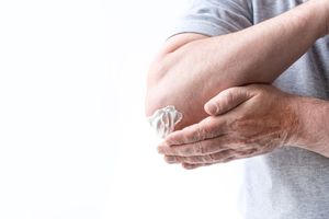 A man smears cream on his elbows, close-up. - stock photo