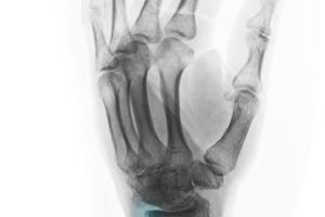 Rare Diseases - Symptoms, Treatment, and More