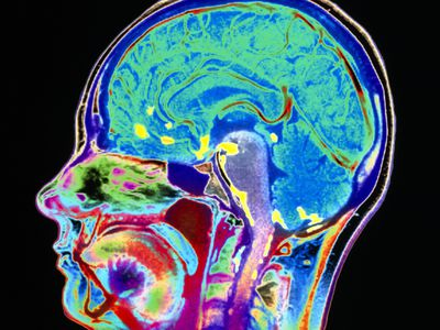 Meningitis brain scan