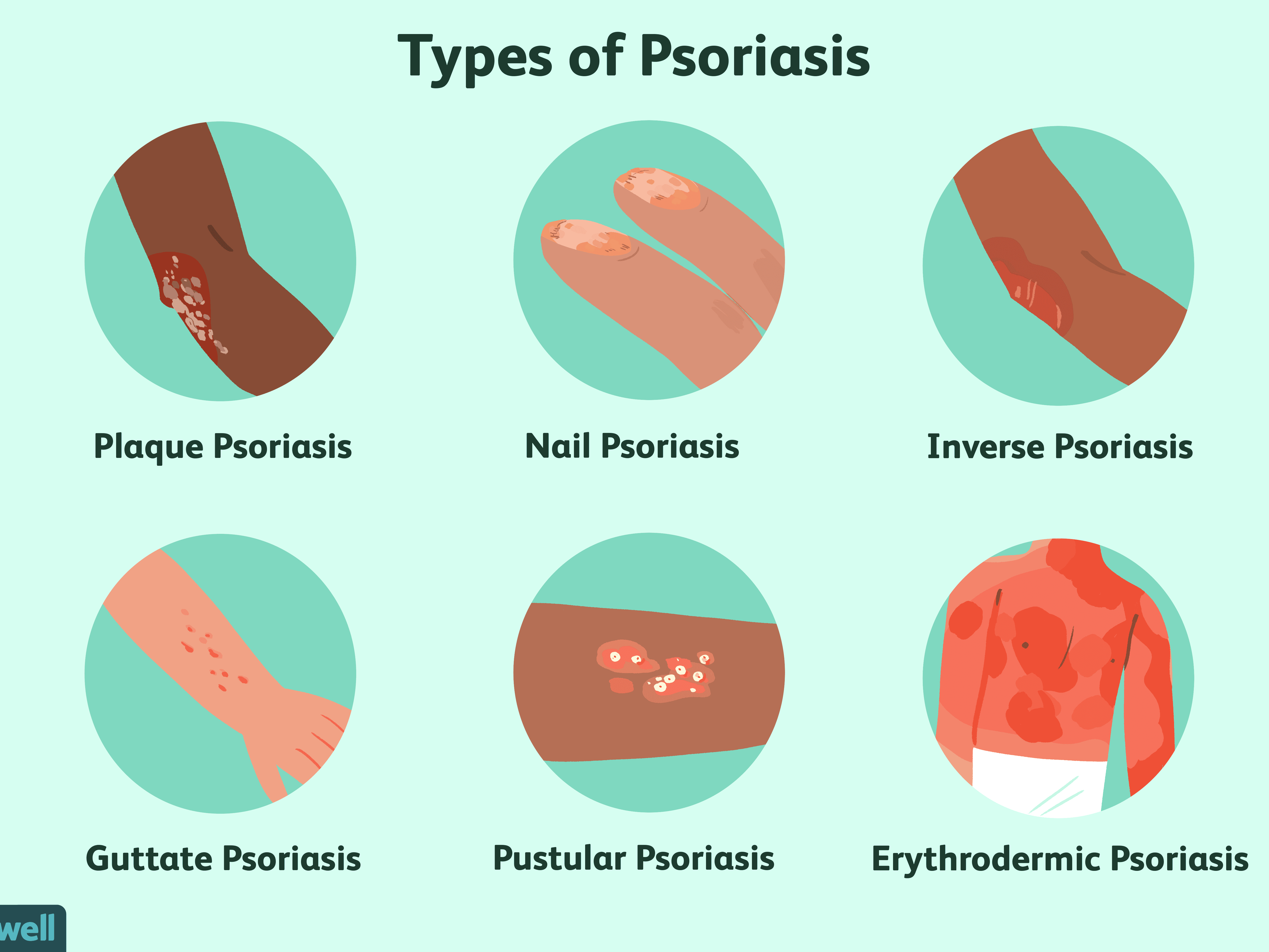 guttate psoriasis and immune system