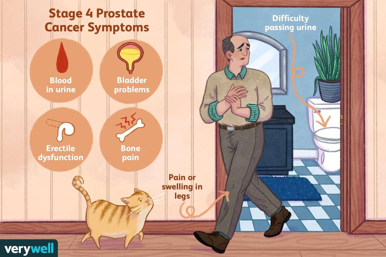 prostate problems treatment Prosztate népi kezelések