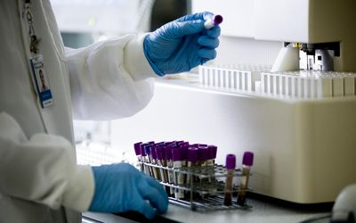 person handling Test tubes in laboratory