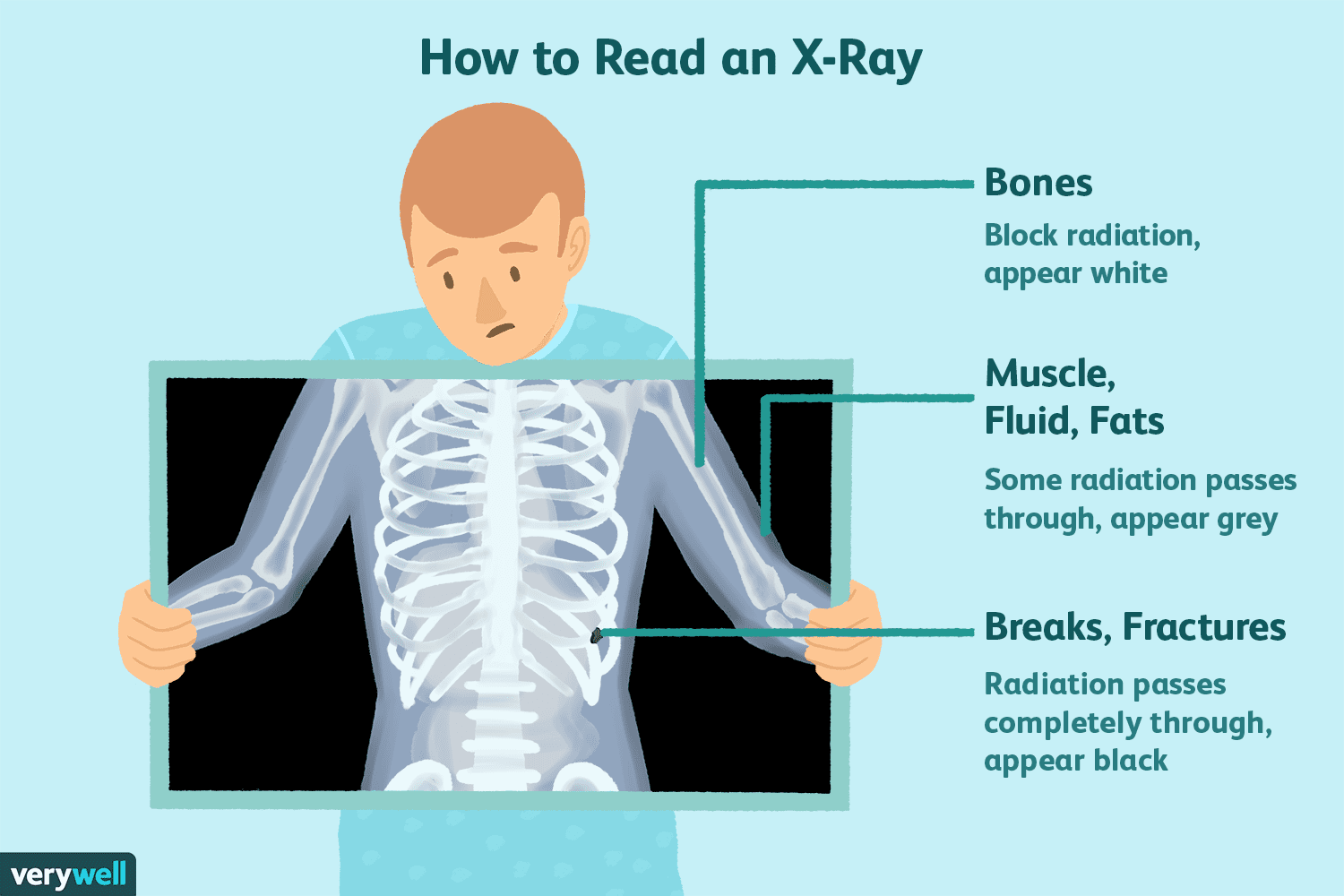 How to Read an X-Ray