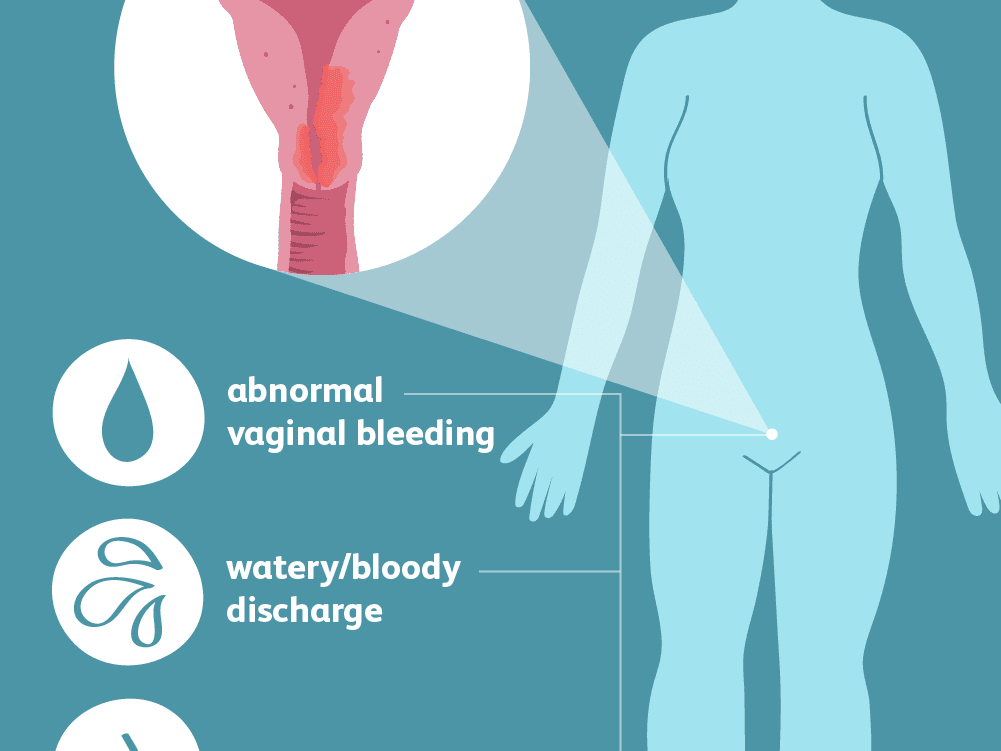 endometrial cancer and pregnancy)