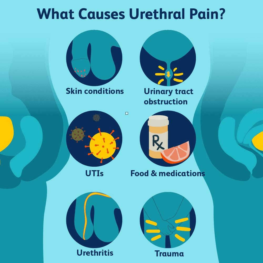 Urethra Urethral Disorders