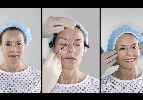 Woman receiving botox treatment