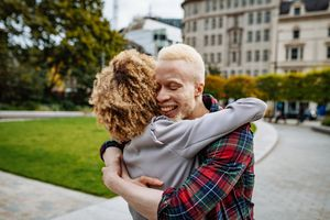 Albino African man hugging his curly girlfriend