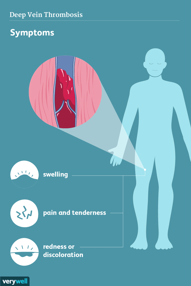 deep vein thrombosis symptoms