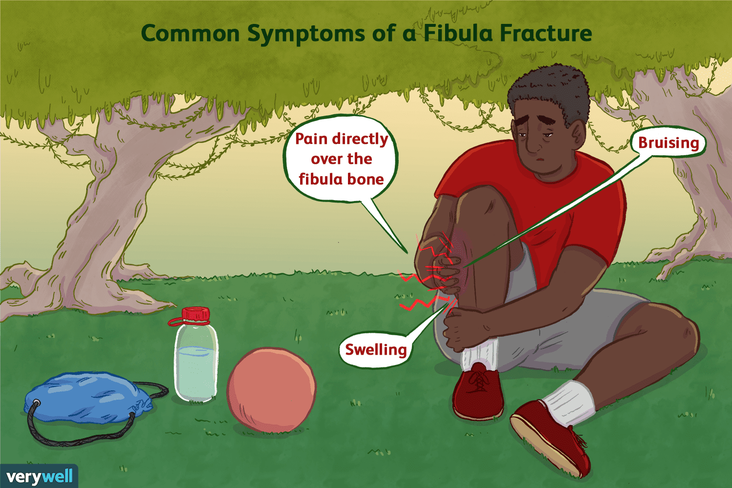 3 Common Types Of Fibula Fractures And How To Fix Them