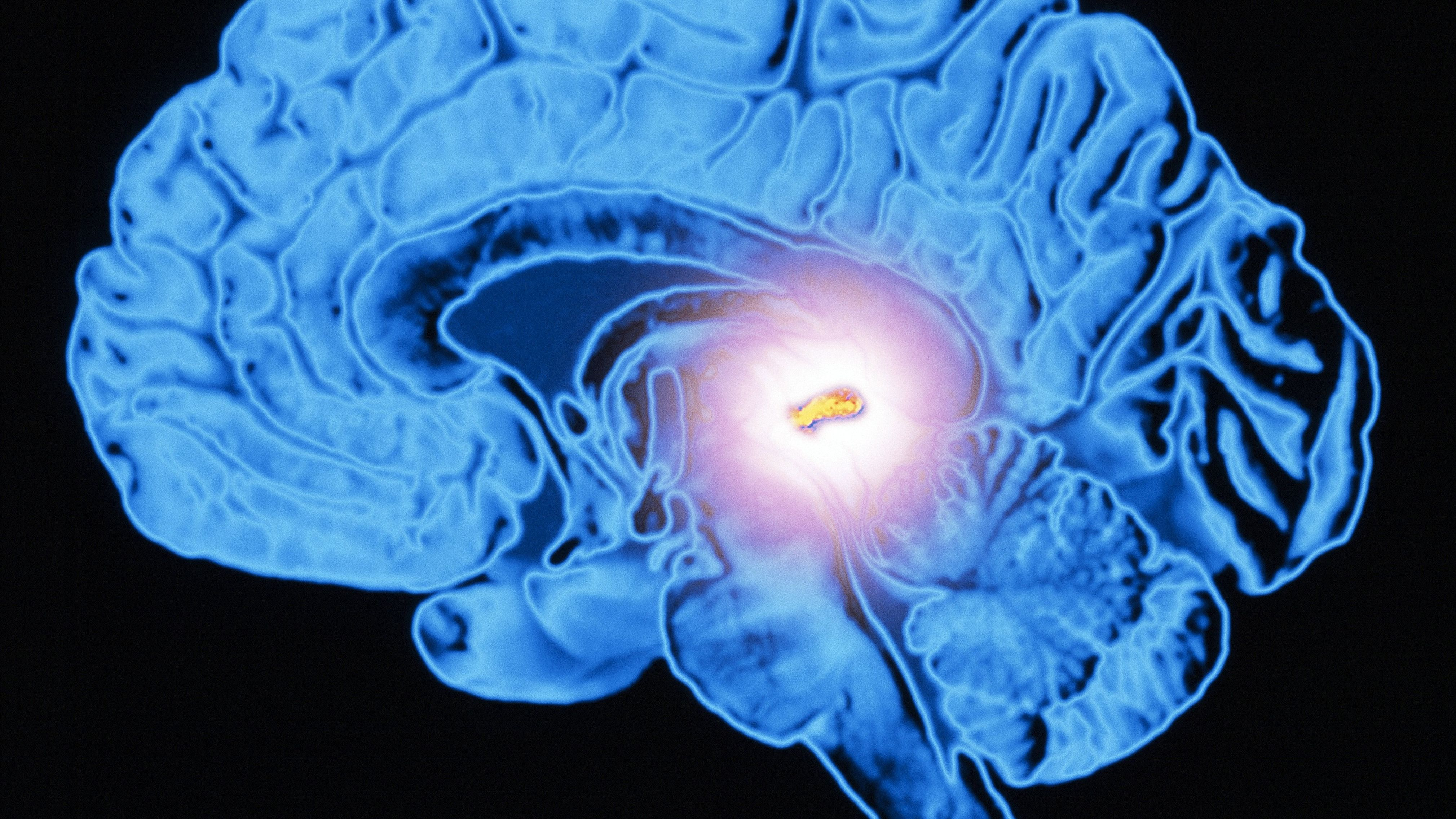Melatonin in Cancer Prevention and Treatment