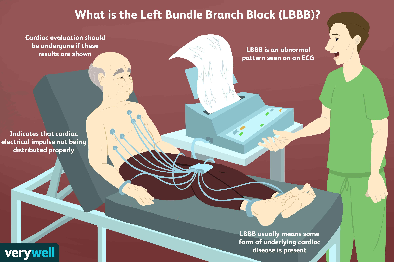what is left bundle branch block