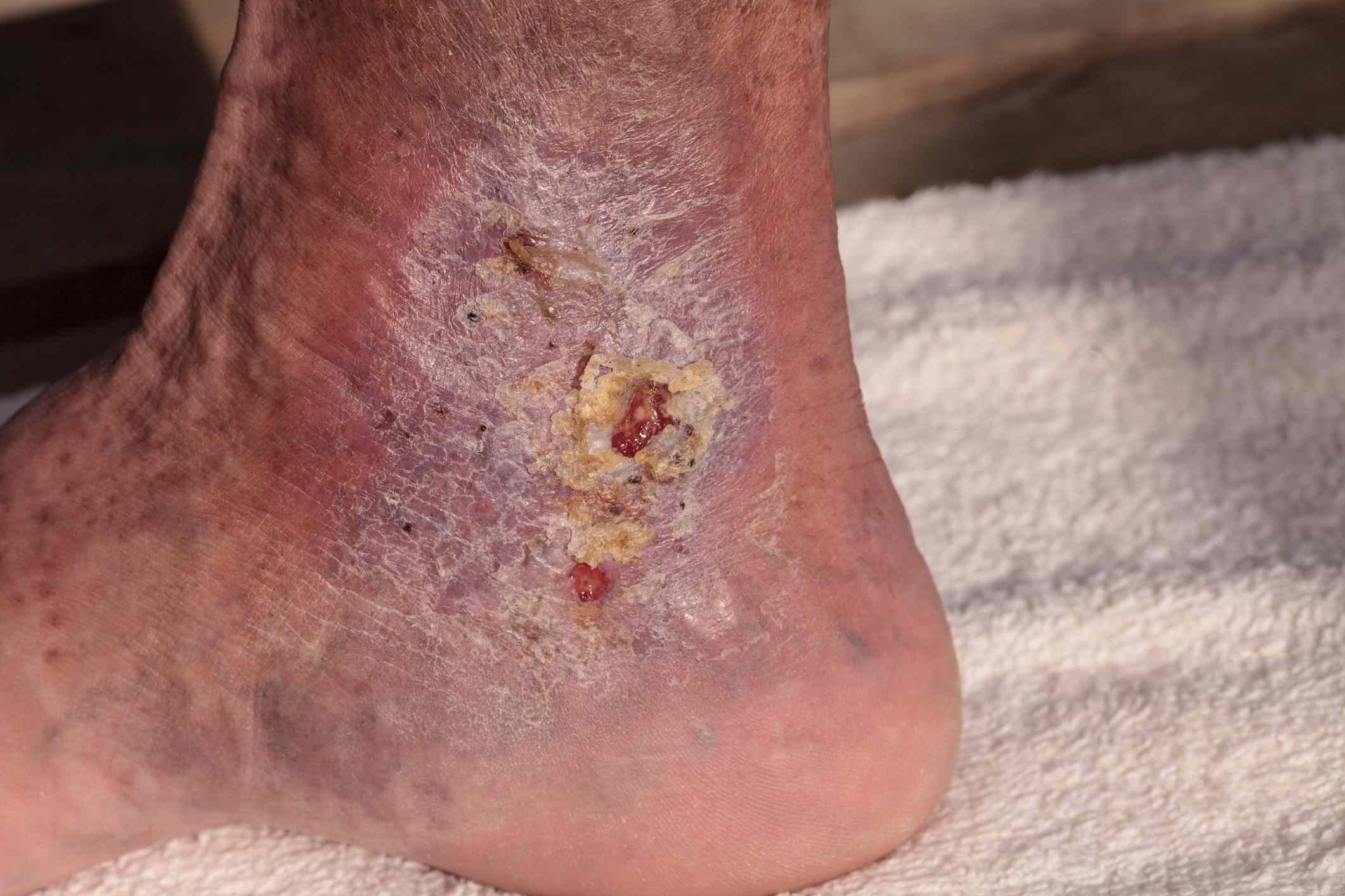 Cellulitis infection on ankle