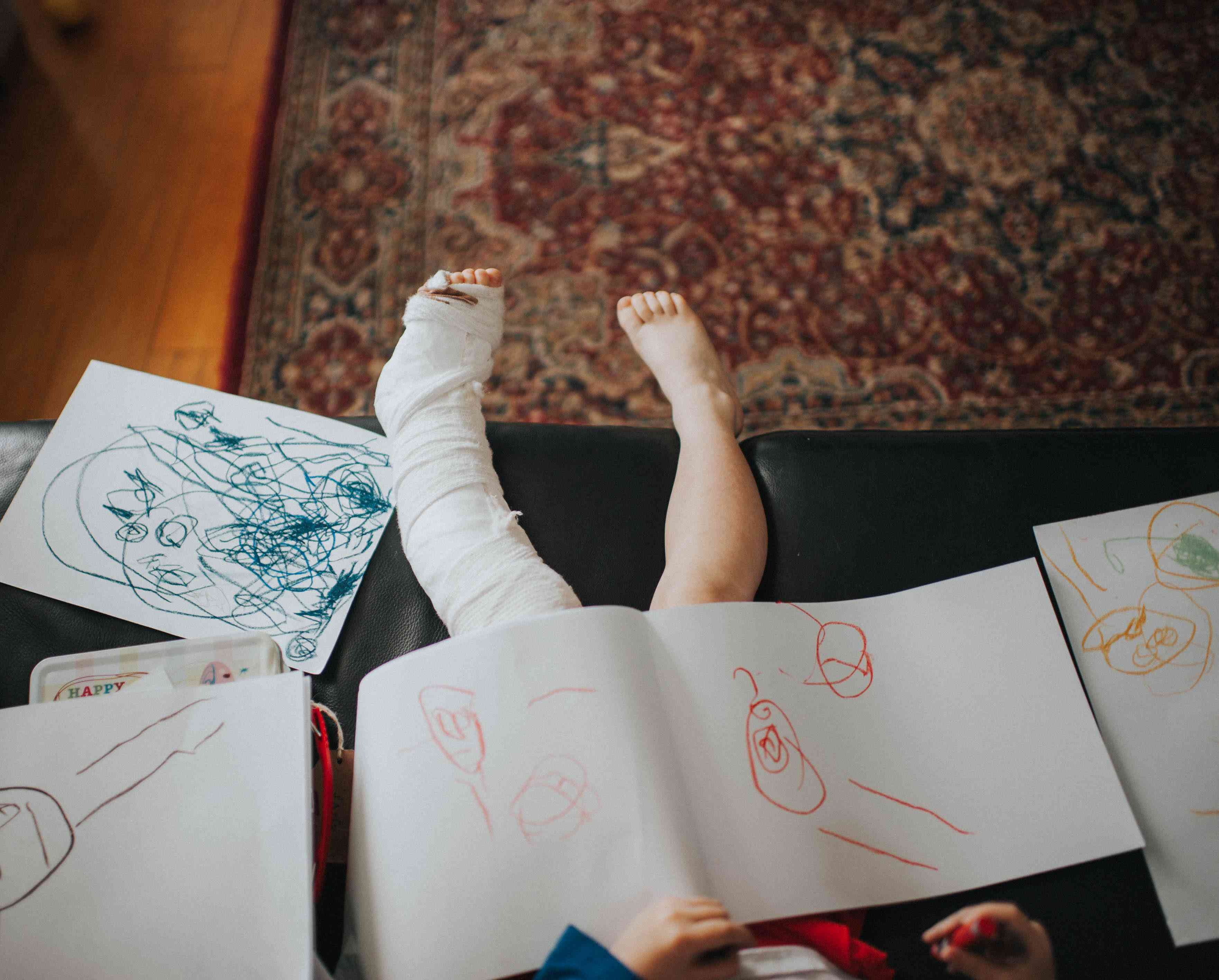 Child with broken leg and plaster cast, drawing