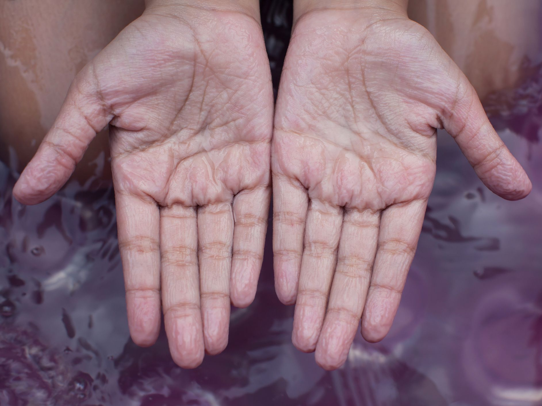 Why Do Fingers Wrinkle When In Water?