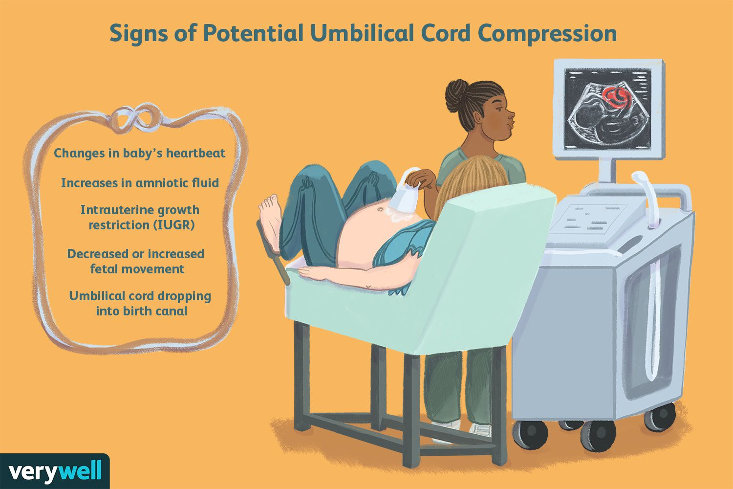 Signs of Potential Umbilical Cord Compression