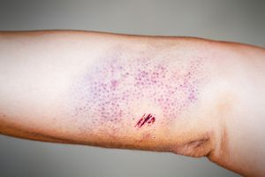 Bruise on the skin