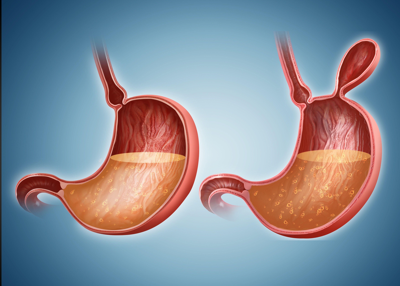 Bowel Obstruction: Symptoms, Causes, Diagnosis, and Treatment