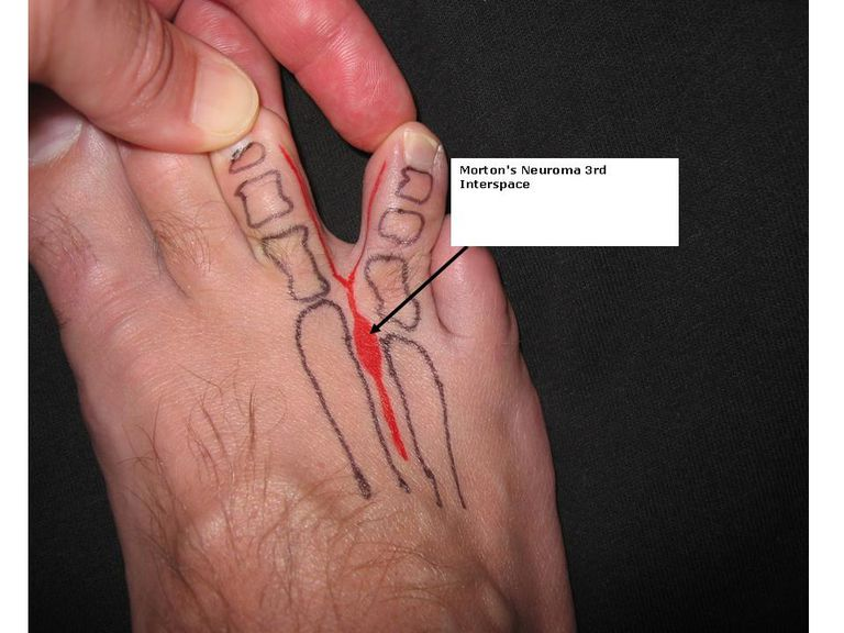 Foot with a third interspace Morton's neuroma labeled and outlined in red.