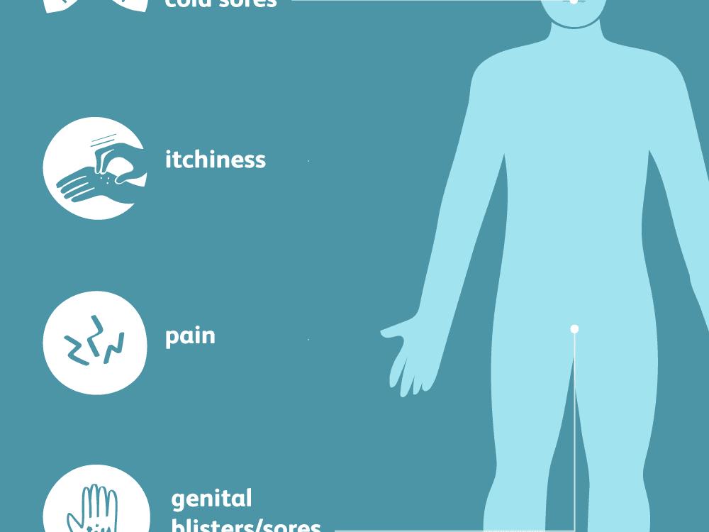 Testi genital herpes Herpes (HSV)
