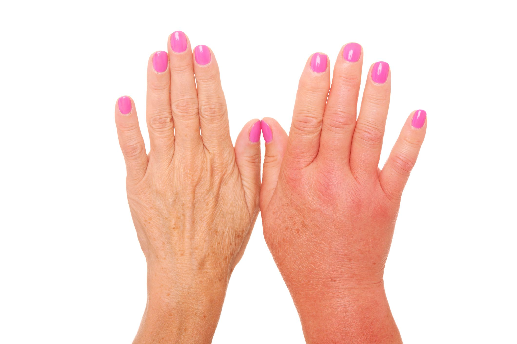 Psoriatic Arthritis Hand And Finger Symptoms