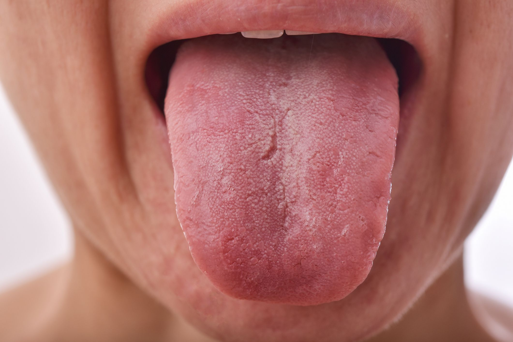 What Is 'COVID Tongue'?