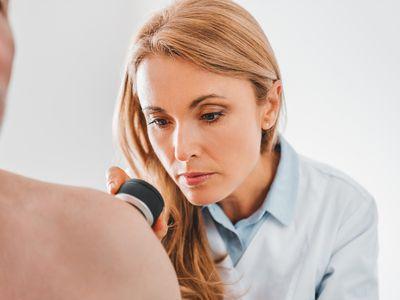 Female dermatologist examines skin moles or acne of senior patient with dermatoscope