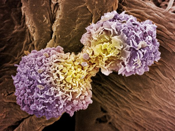 breast cancer cells with a recurrence in the chest wall