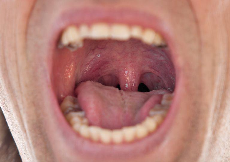 a man's throat