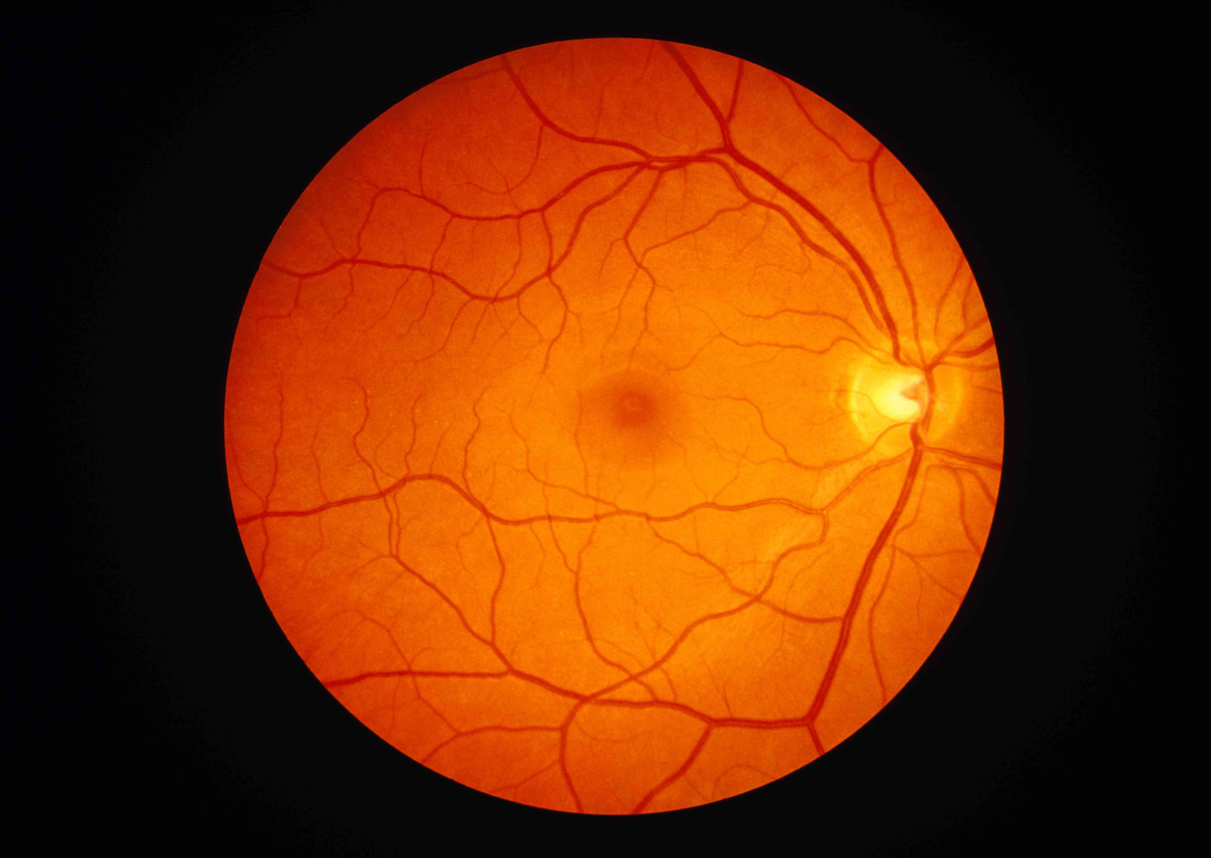An image of a healthy retina