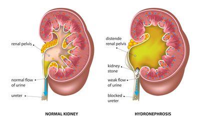 Hydronephrosis prosztatagyulladás, Előfordulás