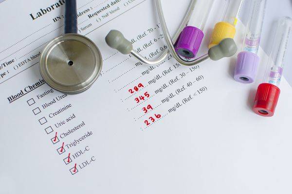 LDL Cholesterol Testing