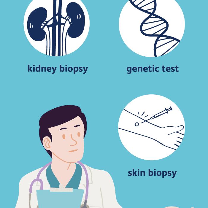 Alport syndrome diagnosis