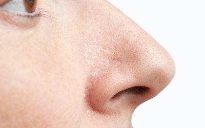 psoriasis on nose