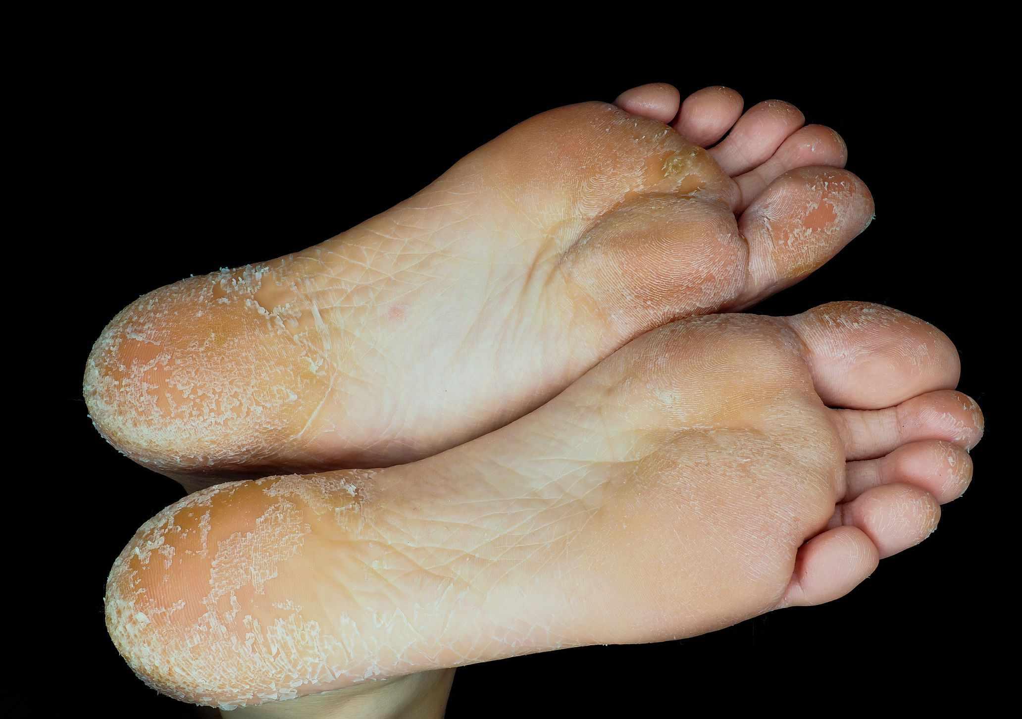 dry skin on soles of feet
