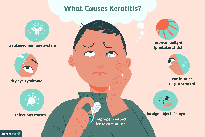 keratitis causes