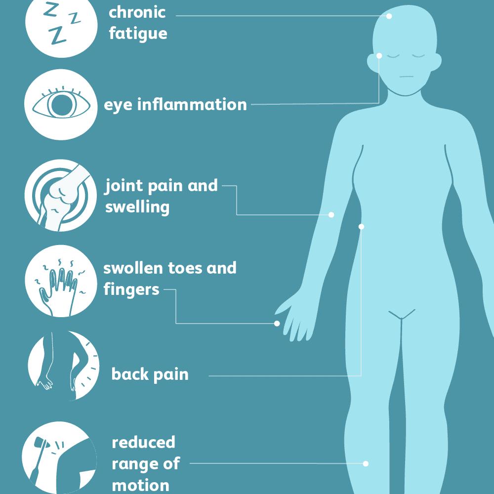 psoriatic spondylitis common symptoms