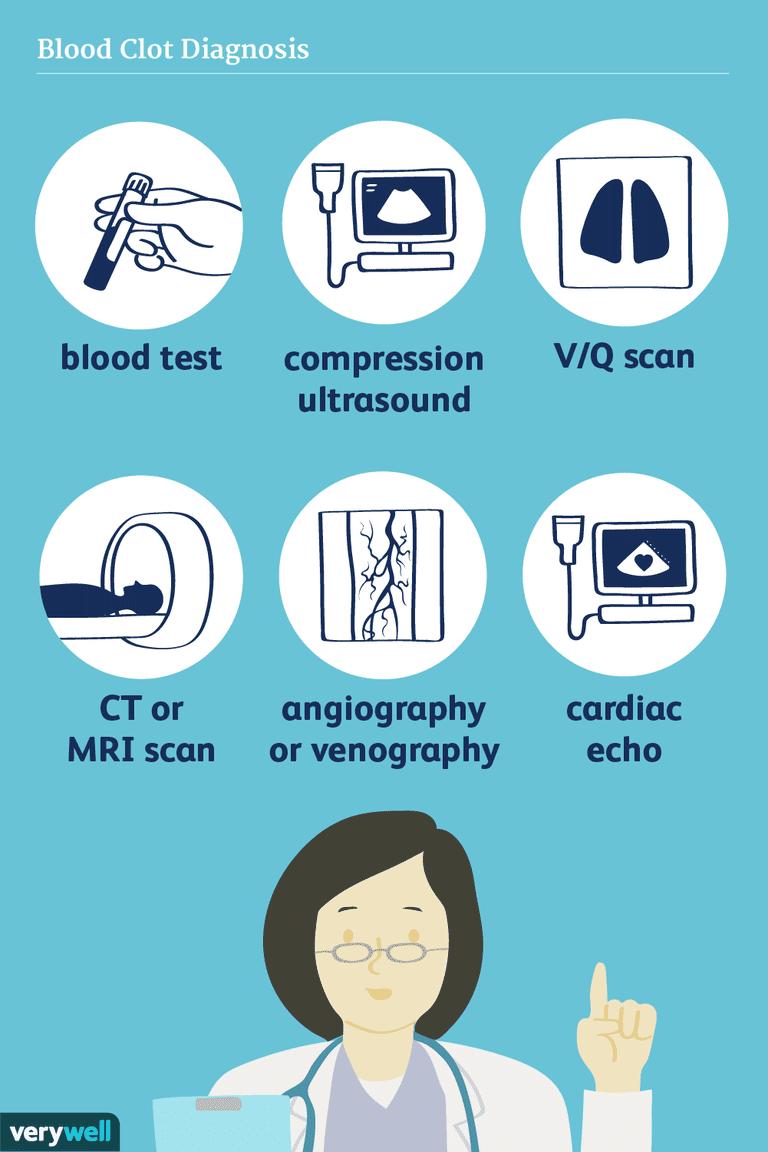blood clot diagnosis