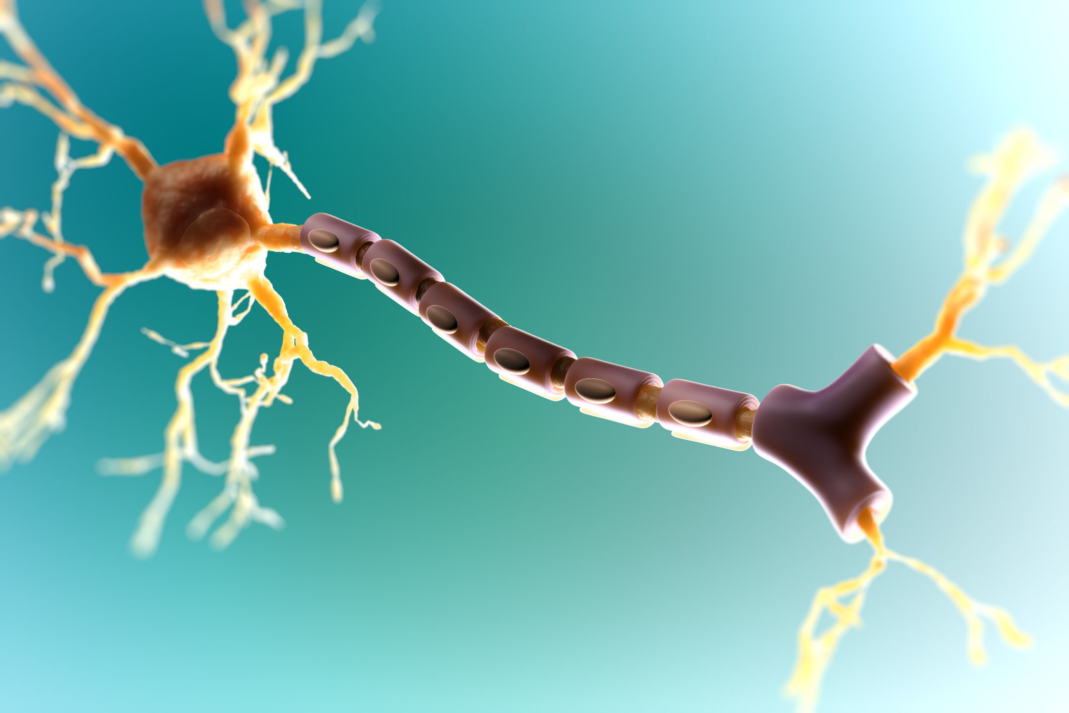 An Overview of Multiple Sclerosis