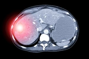 Liver lesion seen on imaging scan