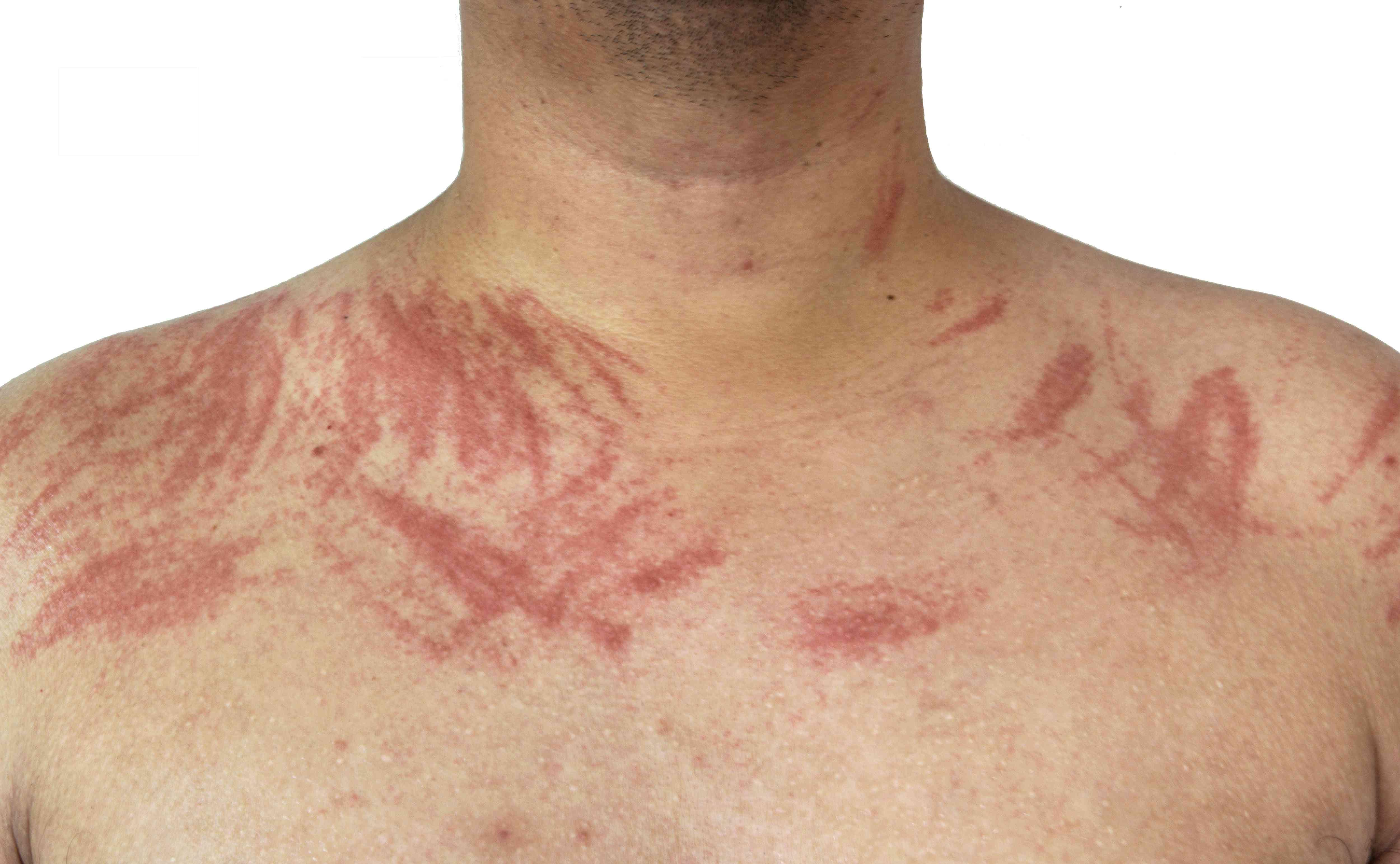 Dermatographia allergy on skin