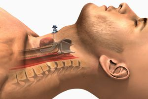 A lateral view of the tracheostomy procedure.