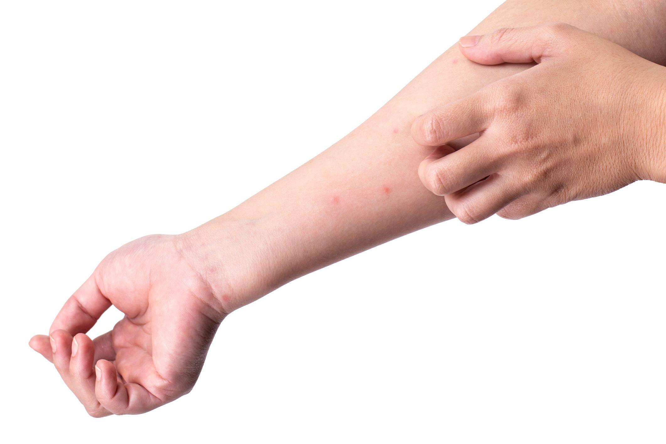 necrotizing fasciitis on the arm