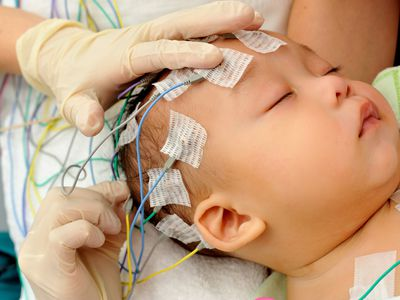 Hands applying electrodes to baby for electroencephalography