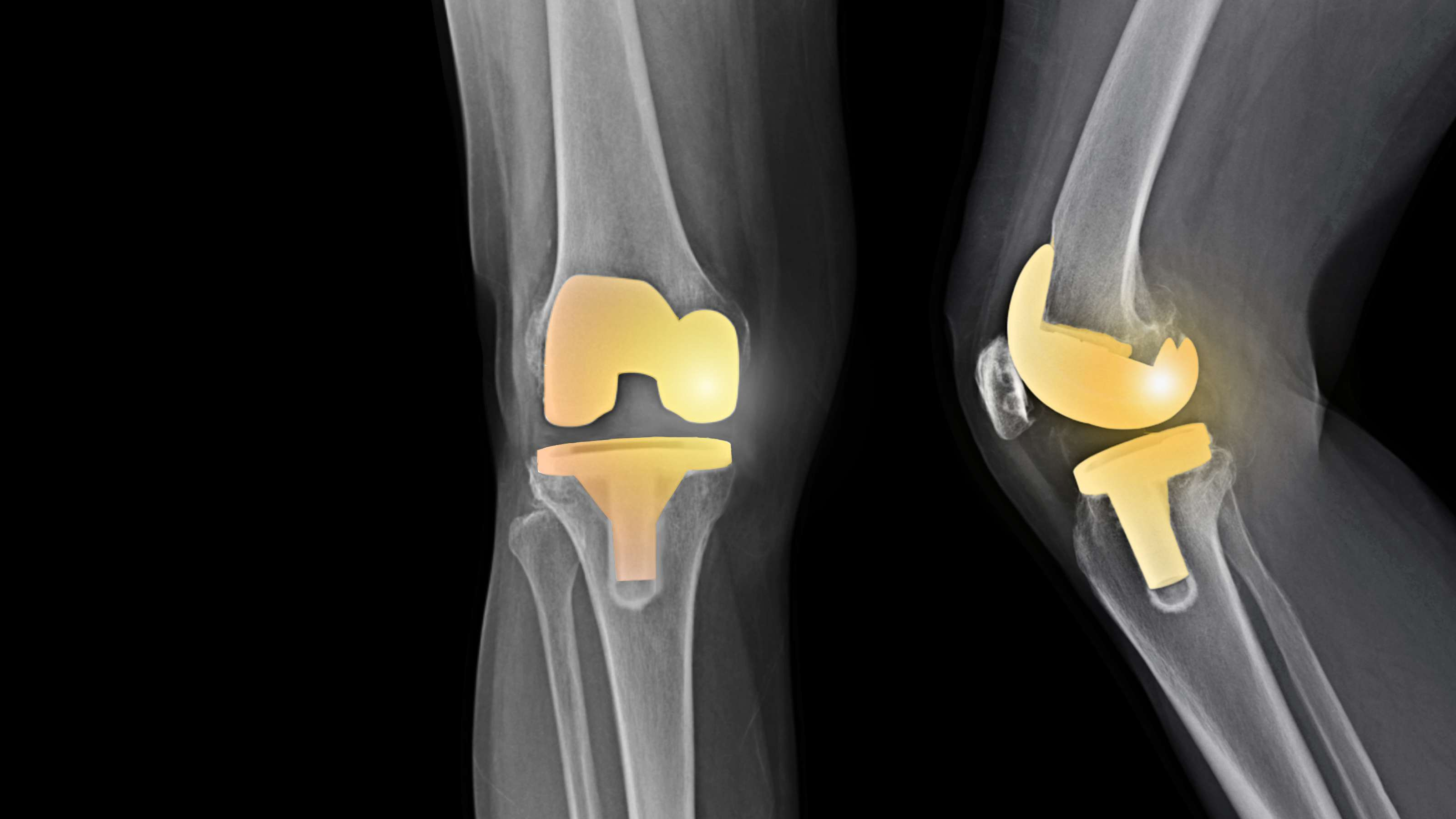 X-ray showing total knee replacement