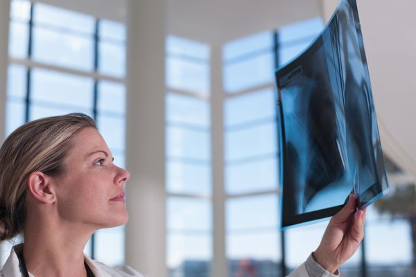 Doctor looking at x-ray wondering if lung transplant may be an option for a person with lung cancer