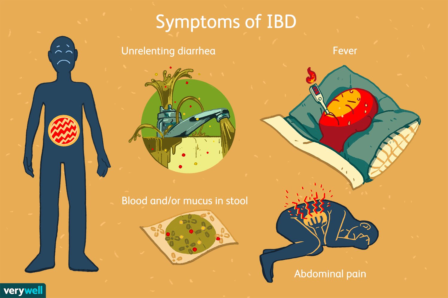 How Inflammatory Bowel Disease Is Diagnosed