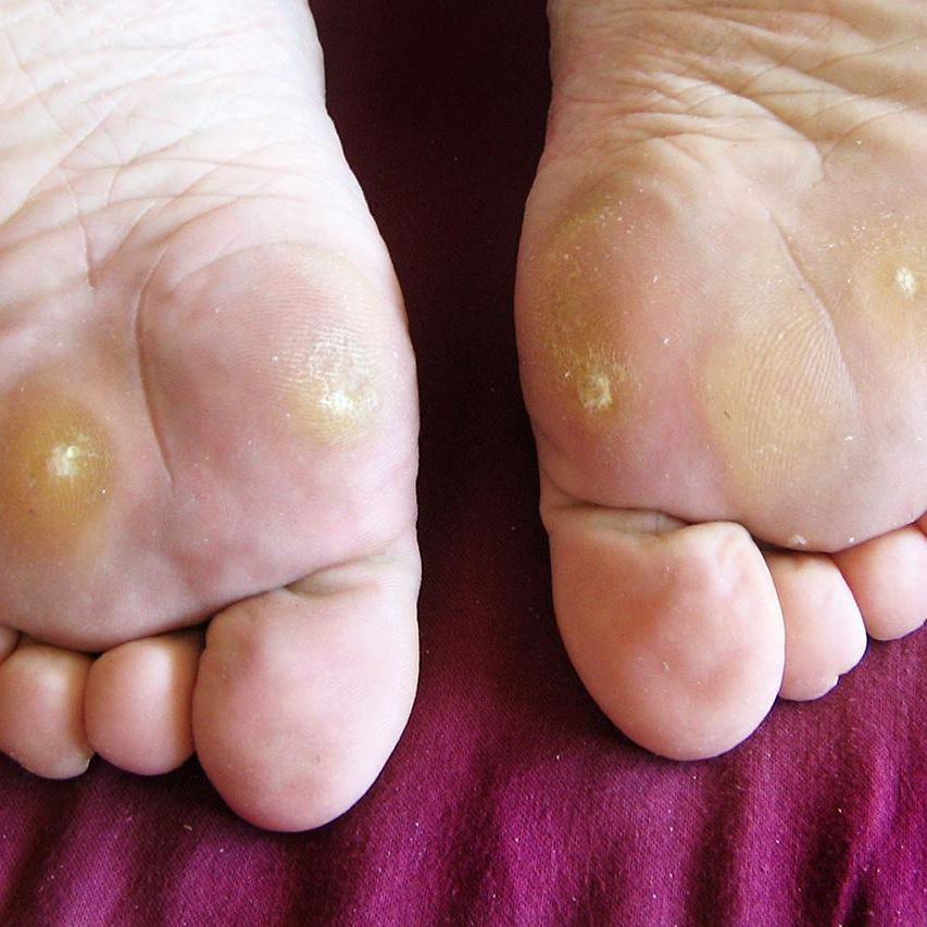 Symptoms, Causes, and Treatment for Plantar Warts