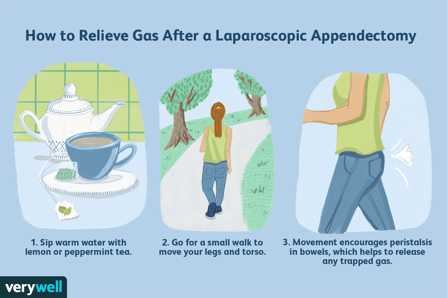 How to Relieve Gas After a Laparoscopic Appendectomy